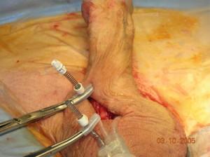 penis-implant